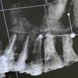 CTスキャンの結果画像