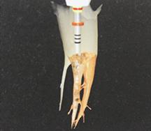 根管充填のイメージ画像