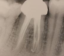 サーマフィルで3次元的に根管充填された症例