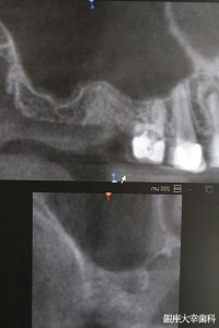 2抜歯後増骨(オンレーグラフト)後のCT→3